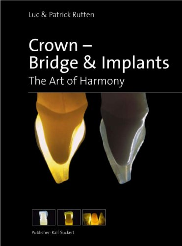 Crown- Bridge & Implants, The Art of Harmony